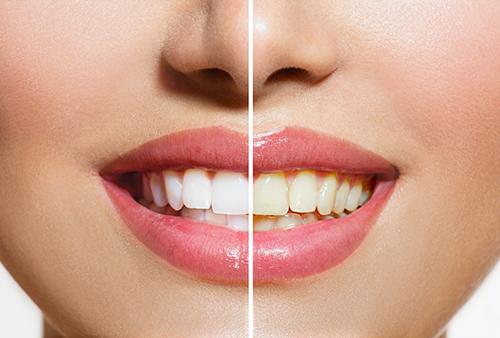 Professionelle-Zahnreinigung
